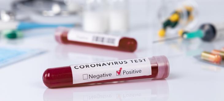 Testing av koronavirus